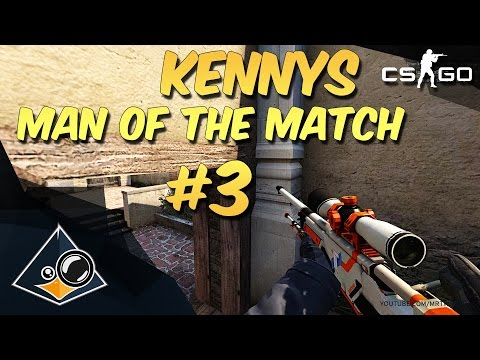 CS:GO - kennyS - Man of the Match #3